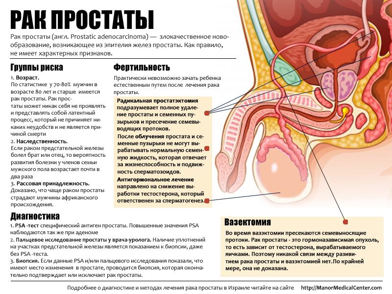 Симптомы рака простаты у мужчин признаки