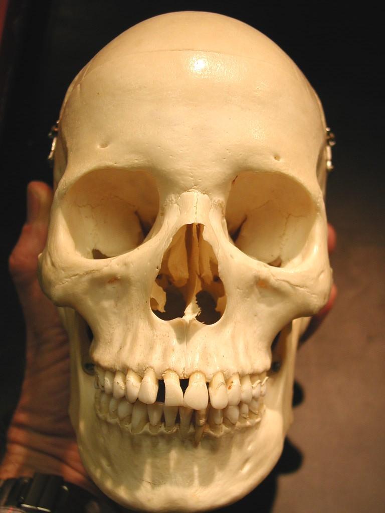 Frontal Bone, Maxilla, Alveolar process of the maxilla, N... - ThingLink