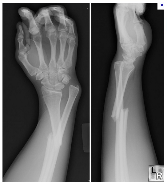 Bone Fracture - ThingLink