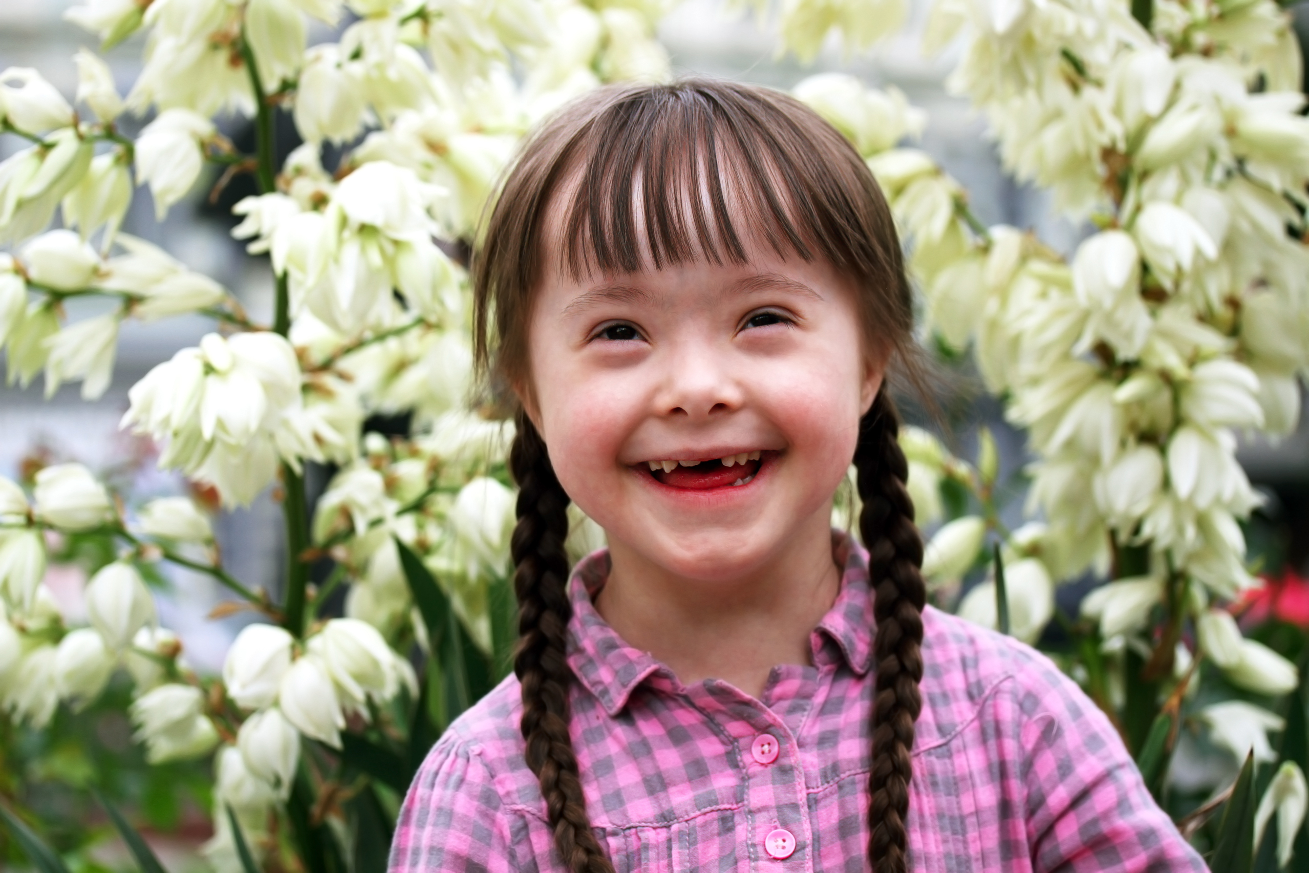 downs syndrome Down syndrome is a condition in which extra genetic material causes delays in the way a child develops, both physically and mentally.