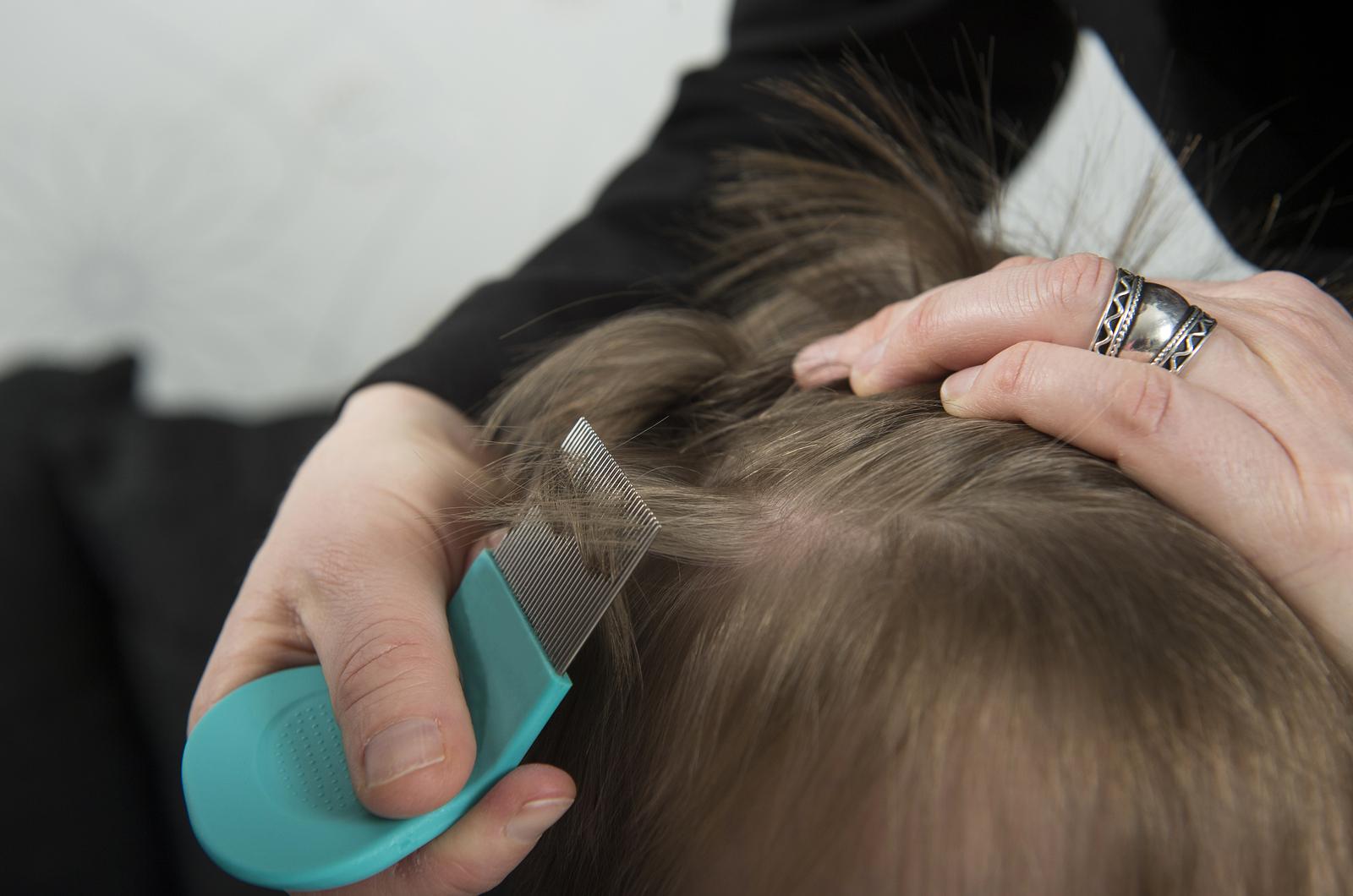 Вши на волосах у ребенка фото