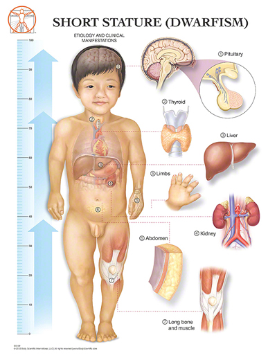 Achondroplasia Symptoms 47904 | GRAPHICWE
